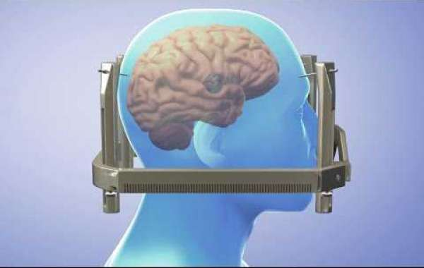 Gamma Knife surgery Risks and Benefits