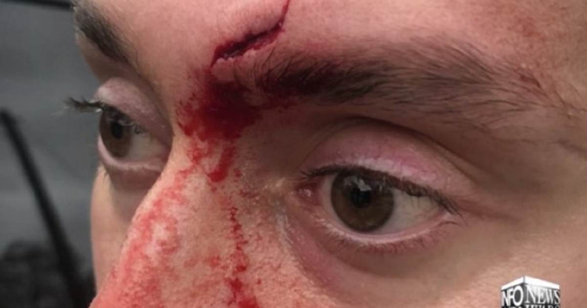Infowars Crew Member Attacked and Left Bloodied By Crazed Leftists at Bernie Sanders Rally, Sent to Hospital for Stitches