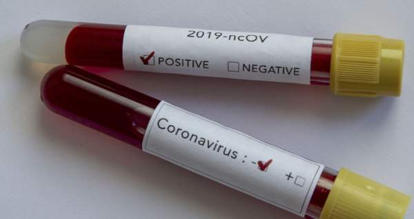 Coronavirus Becoming Much Less Lethal, Virus Losing Potency, Top Doctor Reveals