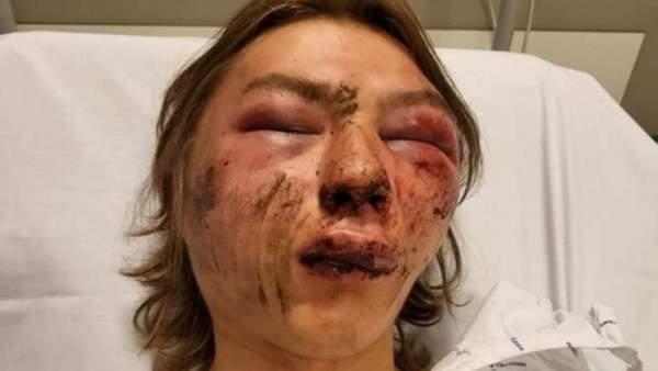 Belgien: Ethan, 15, wurde eine Stunde lang von vier Personen zusammengeschlagen, weil er mit einem Mädchen tschetschenischer Herkunft zusammen war – Jihad Watch Deutschland